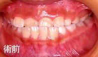 歯列矯正治療術前